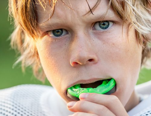 THE IMPORTANCE OF MOUTH GUARDS FOR ALL SPORTS