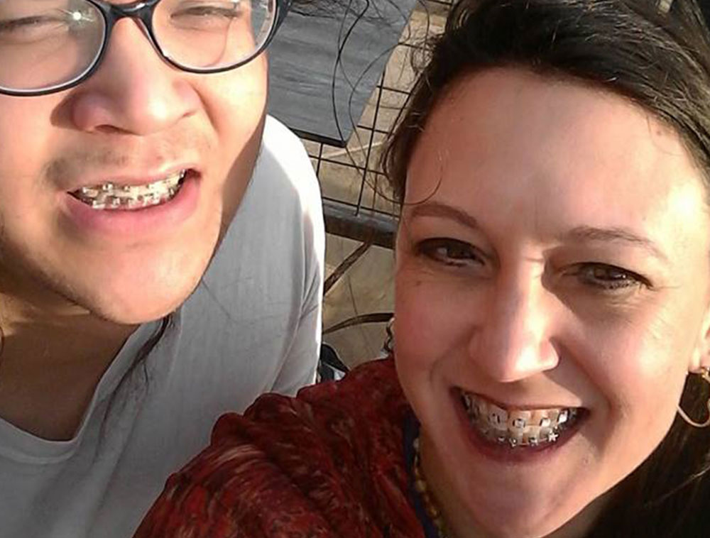 MOM STRAIGHTENS TEETH (AGAIN!) WITH TEEN SON