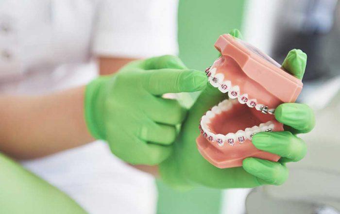 orthodontist demonstrates braces on model