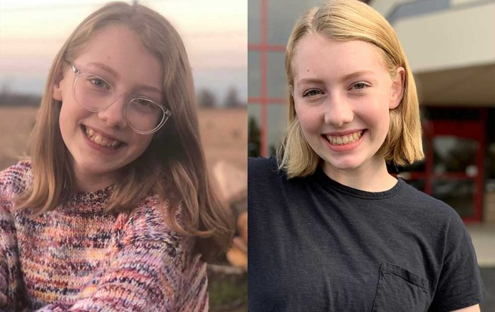 Teen girl's smile transformation after orthodontic braces.